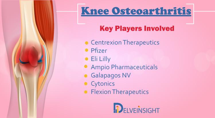 Knee Osteoarthritis Market Insight, Epidemiology, and Market Forecast Analysis Report