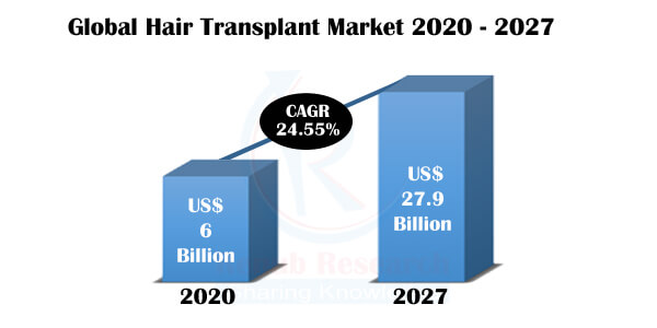 Hair Transplant Market, Global Forecast by Methods, Products, Therapy, Gender, Service Provider, Region, Company Analysis - Renub Research