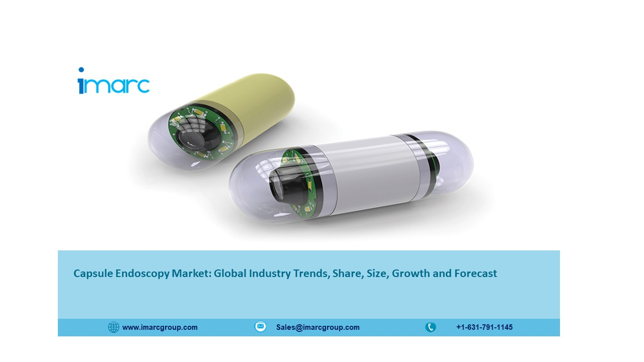 Capsule Endoscopy Market Analysis, Size, Recent Trends and Regional Growth Forecast 2021-2026