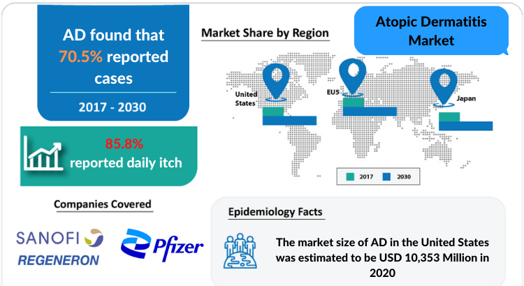 Atopic Dermatitis Market Professional Industry Research Report 2030