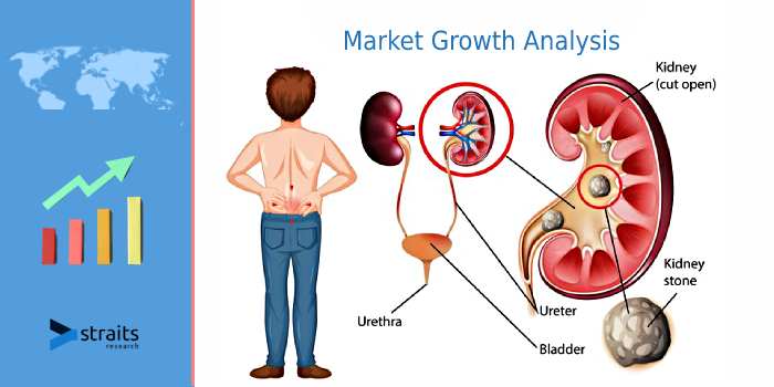 Report Overview On Kidney Stone Market | Increasing Prevalence of Kidney Stone Owing to the Growing Prevalence of Urinary Tract Infection Across the Worldwide is Boosted to Grow Market | DirexGroup