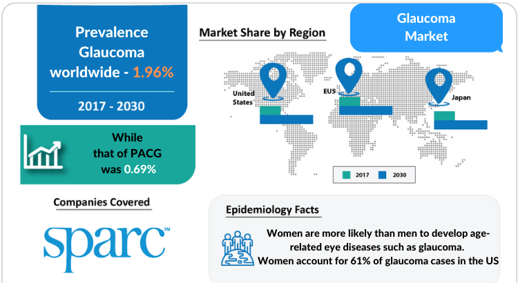 Glaucoma Market Professional and Market Forecast 2030 by DelveInsight