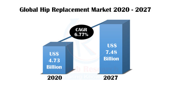 Hip Replacement Market, Impact of Coronavirus, by Products, Regions, Companies, Forecast by 2027 - Renub Research