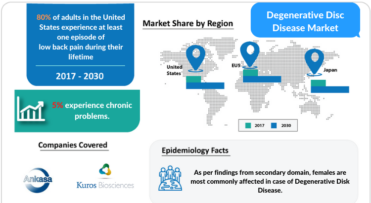 Degenerative Disc Disease Market Insights, Symptoms, Diagnosis and Market Report by DelveInsight