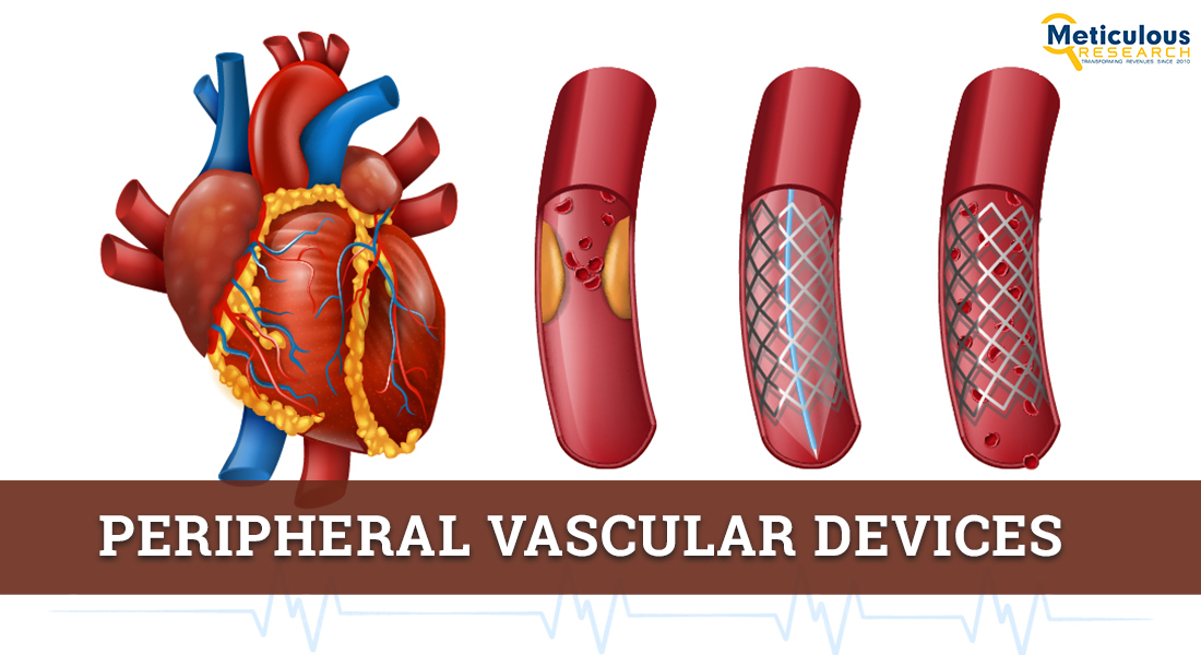 Peripheral Vascular Devices Market: Meticulous Research® Reveals Why This Market is Growing at a CAGR of 6.9% to Reach $12.02 Billion by 2028
