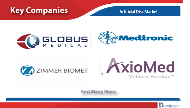 Artificial Disc Market Insights, Competitive Landscape and Market Forecast - 2026
