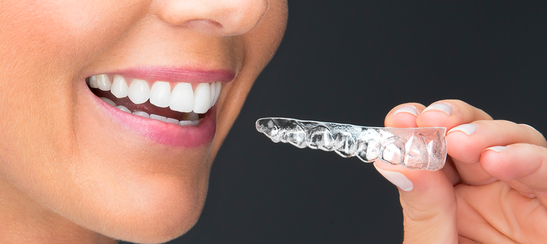 Clear Aligners Market 2021 Incredible Possibilities, Growth Analysis and Forecast To 2031