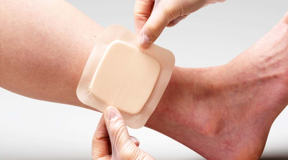 Medical Adhesives Market Excellent Growth Scope Witnessed in the World by 2031