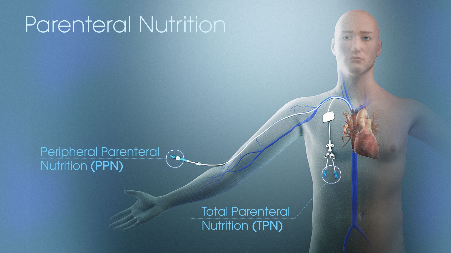 Parenteral Nutrition Market 2021 High Growth Forecast due to Rising Demand and Future Trends to 2031