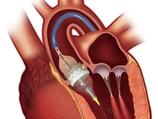 Cardiovascular Devices Market Share 2021: Global Trends, Demand Technological Advancements And Boosting Industry Growth by 2031