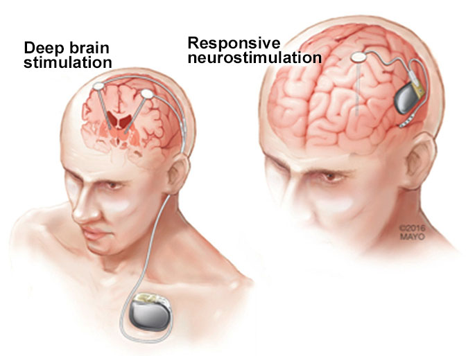 Deep Brain Stimulation Devices Market Size US$ 2.7 Bn Value Anticipated To Reach By 2031