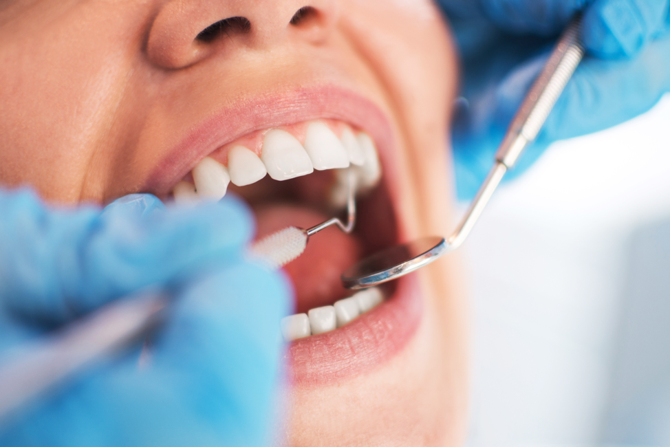 Oral Care Market 2021 High Growth Forecast due to Rising Demand and Future Trends to 2031