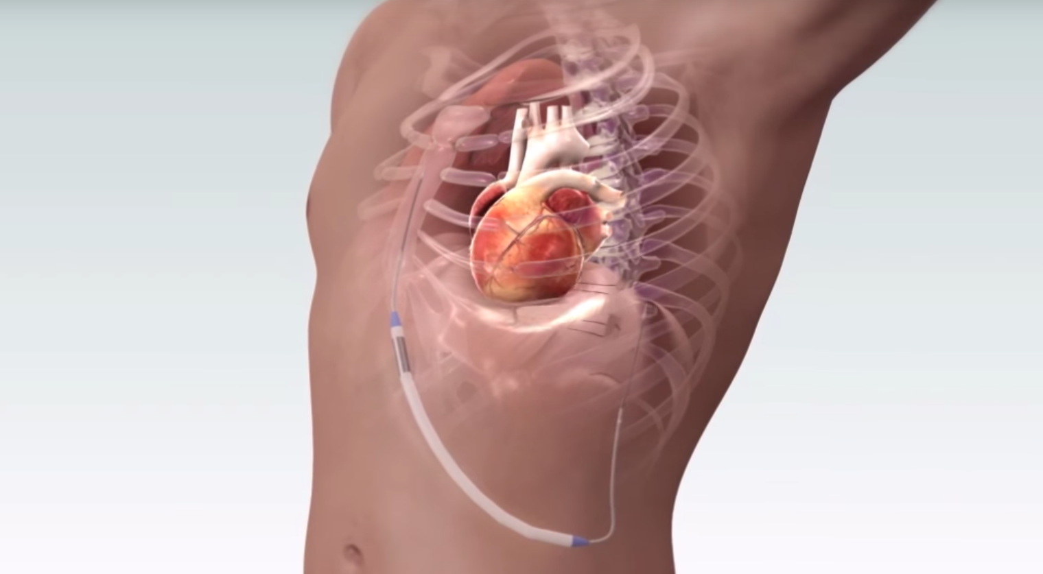 Electrophysiology Devices Market to Flourish with an Impressive CAGR during 2021-2031