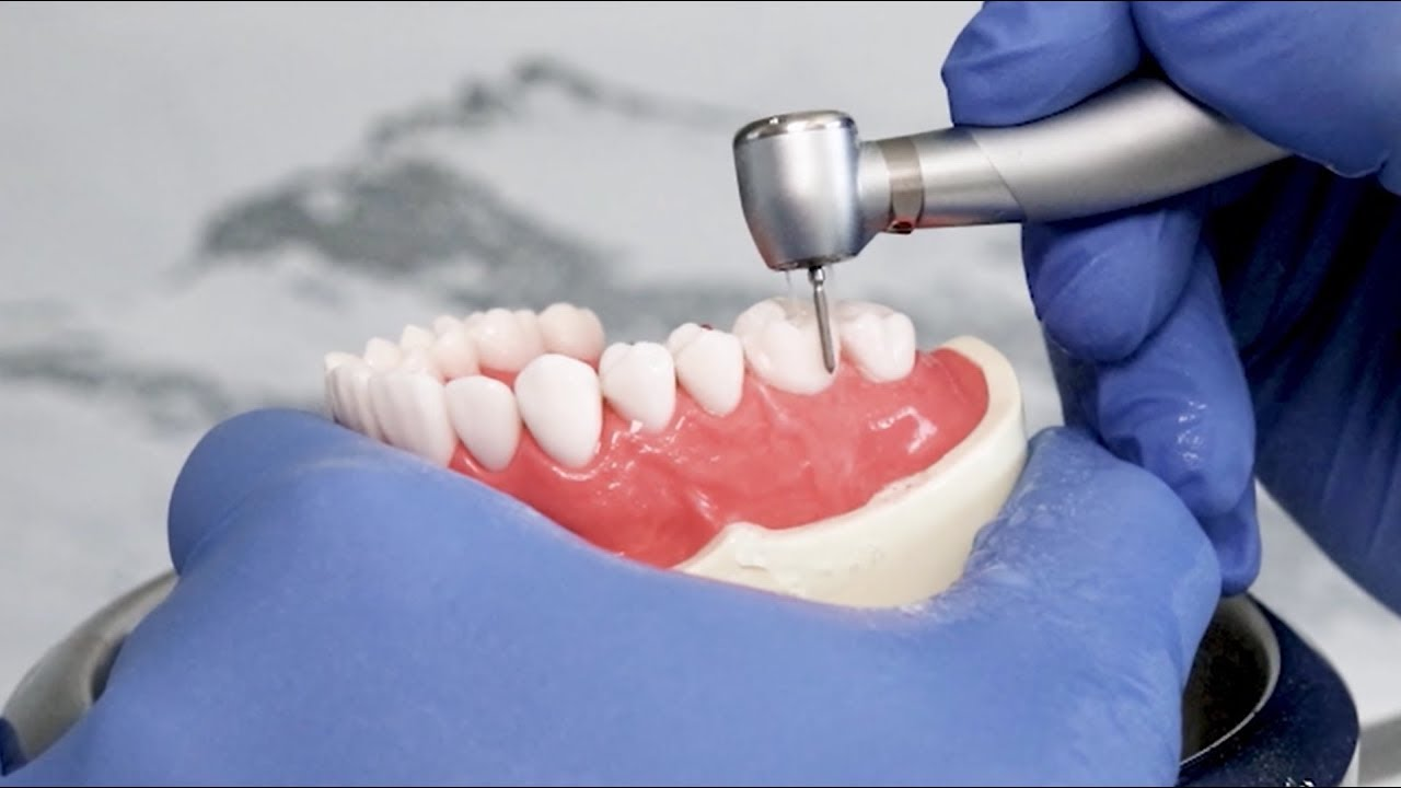 Electric Dental Handpiece Market is Expected a High Probability Business Opportunity by 2031