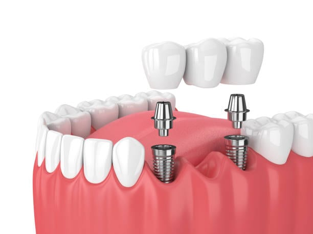 Dental Crowns and Bridges Market Global Analysis, Size, Share, Industry Trends and Rapid Growth by Forecast to 2031