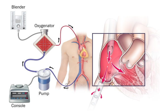 Extracorporeal Membrane Oxygenation Machine Market Research Methodology, Size, Share, Trends, Business Statistics, Top Key Players, Gross Margin and Forecast to 2031