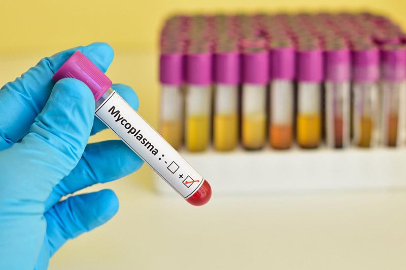 Mycoplasma Testing Market is Set to Experience a Revolutionary Growth 2021-2031