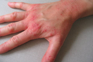Radiodermatitis Market Value, Volume, Growth Predictions and Forecast to 2031