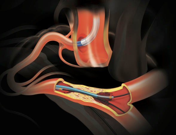 Micro Guide Catheters Market To Register Incremental Growth During The Forecast Period 2031