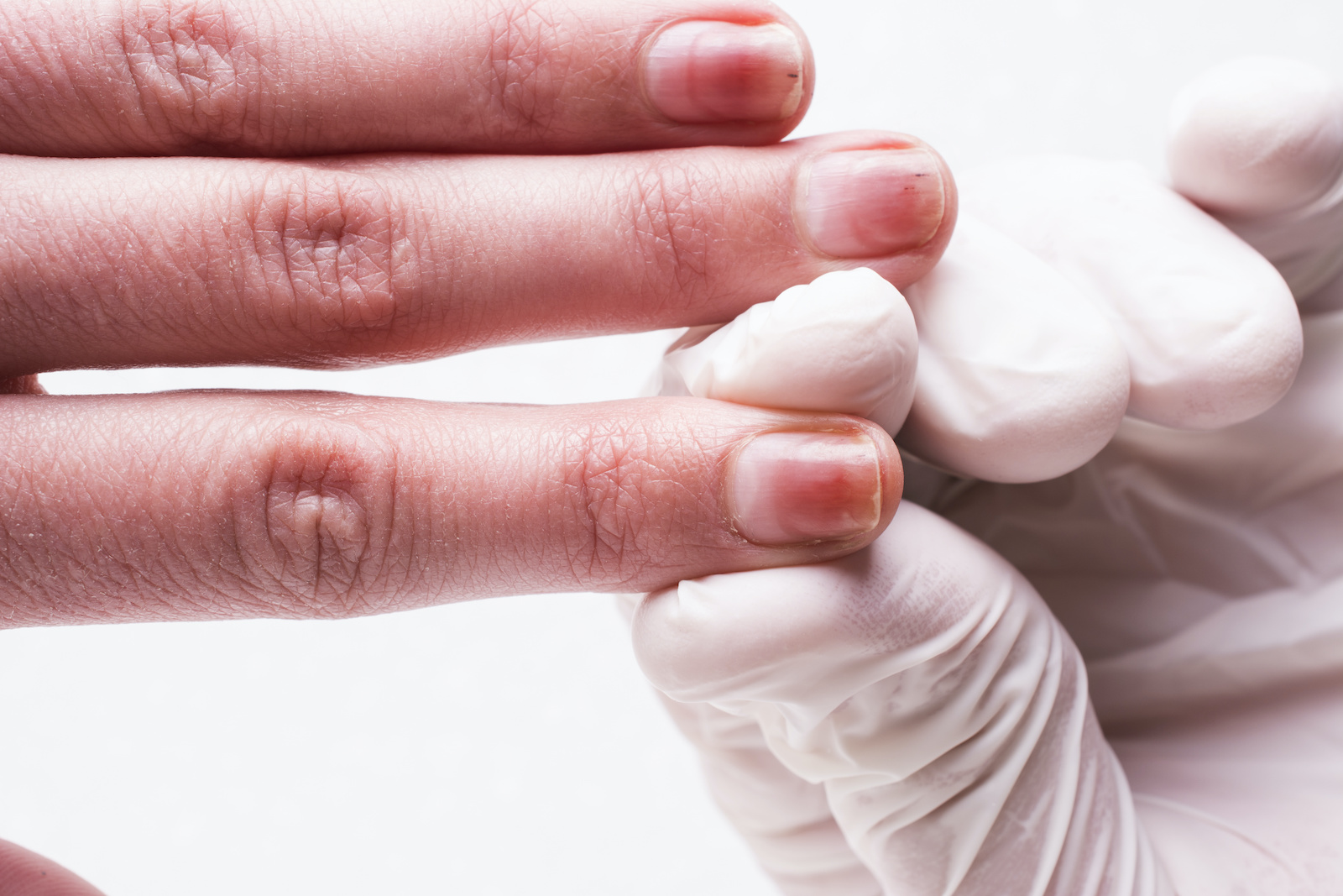 Psoriatic Arthritis Treatment Market Expected to Reach US$ 15.75 BN By Forecast Year 2031 | insightSLICE