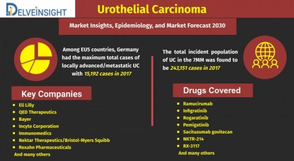 Urothelial Carcinoma Market Analysis